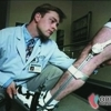 ORTOTECH produse si servicii de tehnica ortopedica, ortezare si protezare