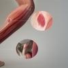 Tratarea unei entorze la glezna prin fizioterapie